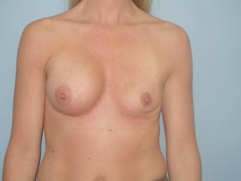 Complex Revisionary Breast Surgery-implant exhange after deflation before 339525
