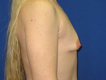 Augmentation Mammaplasty