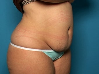 Abdominoplasty before 134583