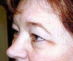browlift and upper eyelid surgery before 84478