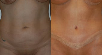 Tummy tuck before 143282