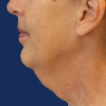 Lower Facelift and Necklift with Platysmaplasty before 243445