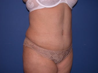 Tummy Tuck after 73691