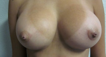 Breast Augmentation  after 560791