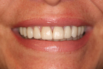 Porcelain Veneers Smile Makeover after 164361
