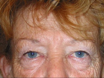 Upper and Lower Lid Blepharoplasty before 147720