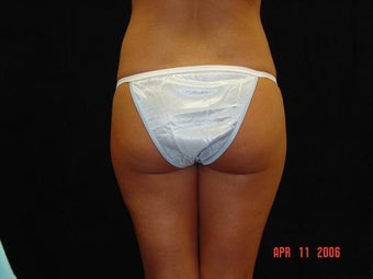 Buttocks Augmentation  before 203387
