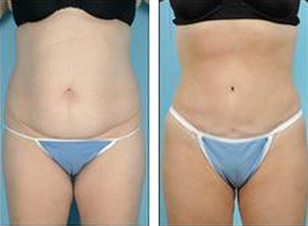 Tummy Tuck (Abdominoplasty) before 324853