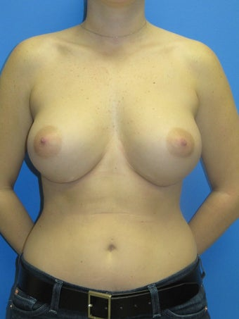 Breast Augmentation after 348645