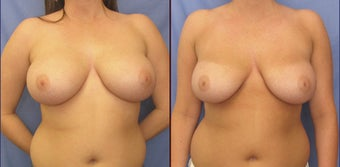 "Breast Reduction with liposuction (""scarless breast reduction"") before 98604"