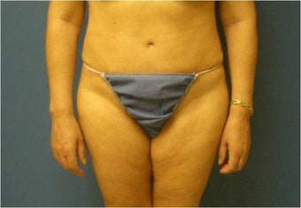 Abdominoplasty, Tummy Tuck, Liposuction after 401748