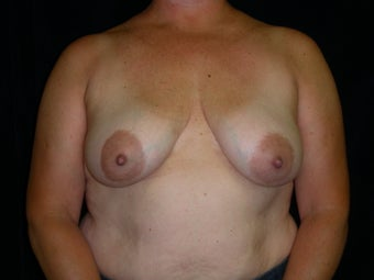 Breast Reconstruction-Direct-to-Implant  before 581332