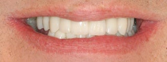 Dental implants, all porcelain crowns after 503161