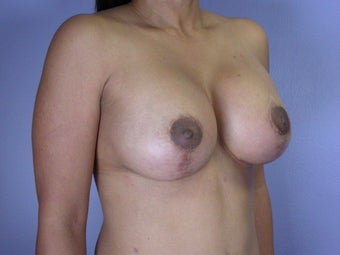 Breast Lift / Breast Augmentation after 291080
