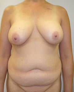 DIEP Flap Breast Reconstruction - Bilateral before 295193
