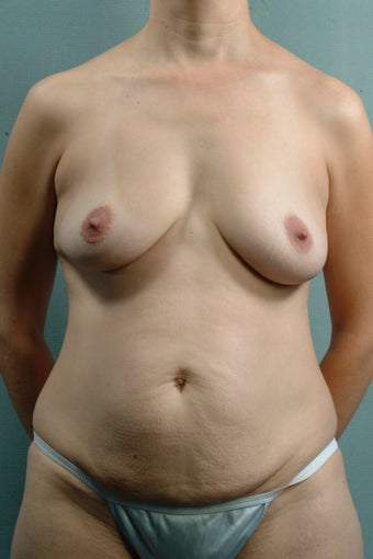 Breast Lift/Tummy Tuck/Liposuction/Umbilical Hernia Repair before 240928