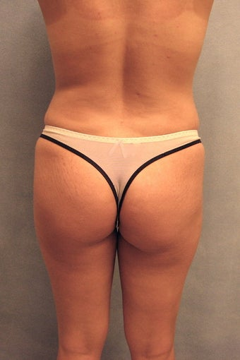 Buttock augmentation before 88871
