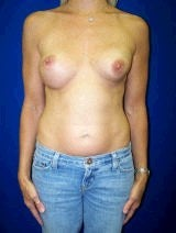 Revision Breast Surgery, Breast Enhancement