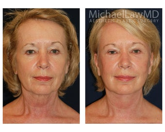 Cheek Augmentation before 415266