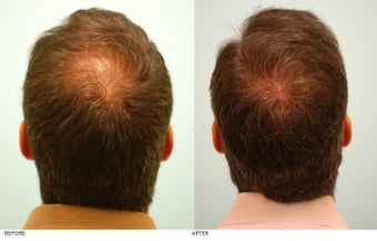 Hair Transplant after 158227