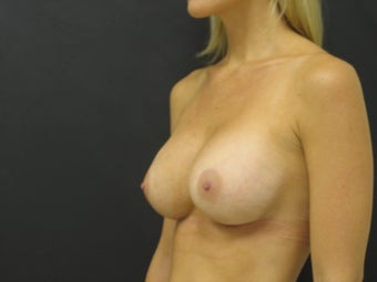 Breast Revision Surgery after 146279