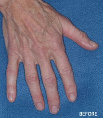 Radiesse Filler Augmentation of the Hands before 328103