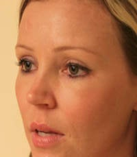 blepharoplasty (eyelids) after 219342