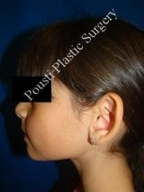 Ear Surgery (Otoplasty) 579092