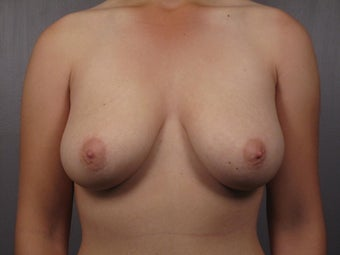 Breast Lift  before 302533