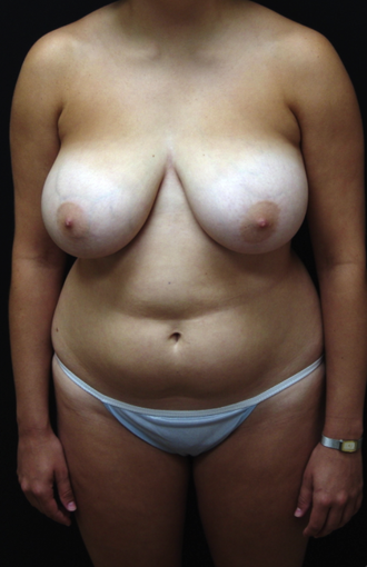 Breast Lift and Tummy Liposuction before 230737