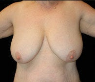 Breast Lift before 633839