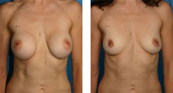 Breast Implant Removal with Internal Lift before 562127