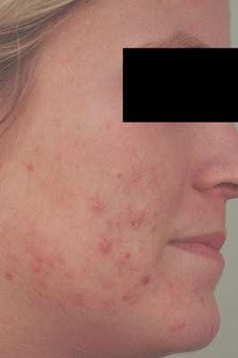 Laser Acne Treatment before 82978
