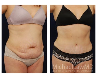 Abdominoplasty - Tummy Tuck after 396135