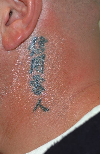 Tattoo Removal Before and After Pictures before 413954