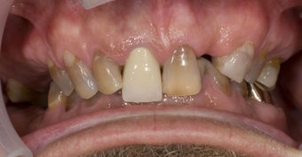 full mouth restoration 363948