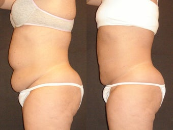 SmartLipo before 96257