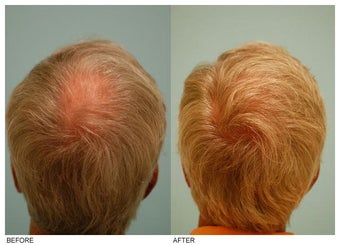 Crown (Vertex) Hair Transplant before 134771