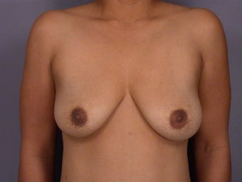 Breast lift with implants before 321711