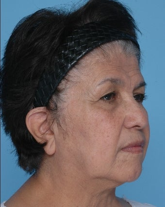SMAS Facelift and Upper Eyelid Lift  before 67246