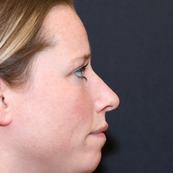 Rhinoplasty (Hump & Tip) after 572877
