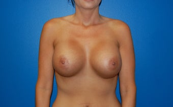 Breast augmentation after 363867