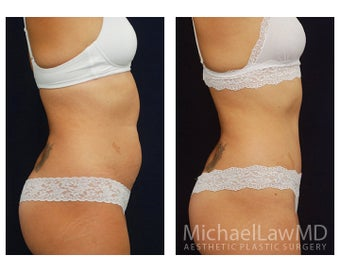 Abdominoplasty - Tummy Tuck 396139