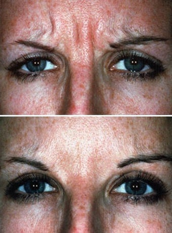 Botox showing Facial Expression Before & After before 6330