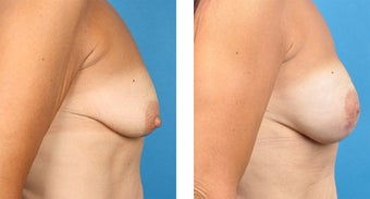 Breast Reconstruction: One-Stage Breast Reconstruction after 561811