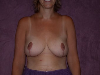 breast lift/breast reduction