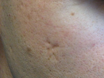 Acne scars treated with Punch Elevation of scars and Fractional Laser Resurfacing before 272104