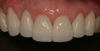 All-Ceramic Crowns after 253183