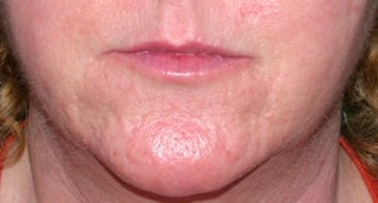 Vbeam for rosacea after 374537