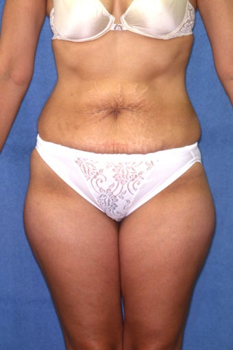 Tummy Tuck with Liposuction before 410983